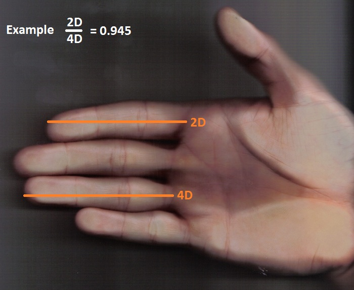 Hand with index finger shorter than the ring finger, resulting in a small 2D:4D ratio, pointing to a high exposure to testosterone in the uterus. source: Wikimedia Commons